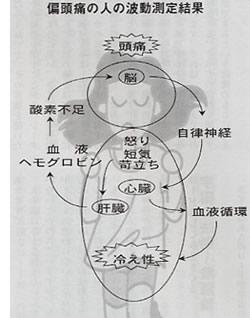偏頭痛の人の波動測定結果
